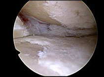 badly damage meniscus
