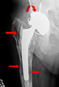X-ray showing mechanical loosening of hip prosthesis