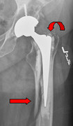 X-ray of hip fracture after hip replacement